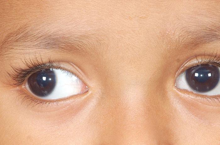 چشم پزشک