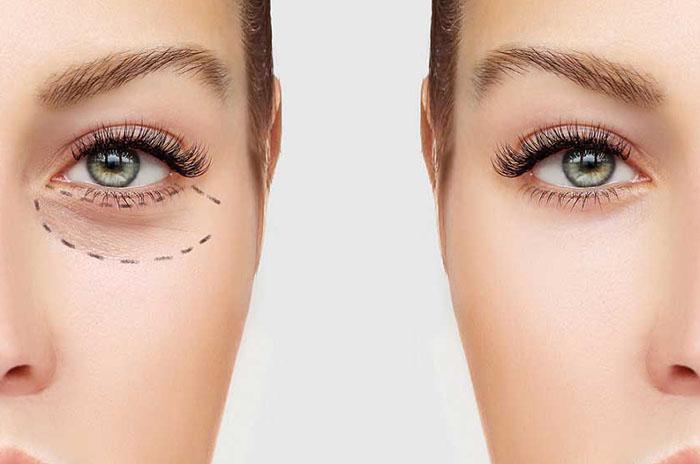 چشم پزشک، متخصص چشم